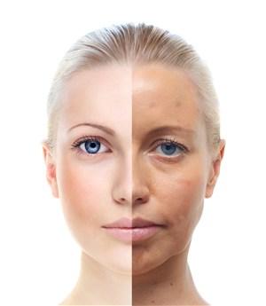 左右脸肤质对比图